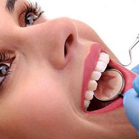 Dental Cleanings | Penhold Dental Care