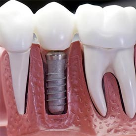 Dental Implants and Denture Stabilization