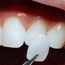 Porcelain Veneers | Penhold Dental Care
