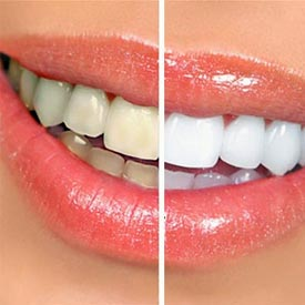 Teeth Whitening | Penhold Dental Care